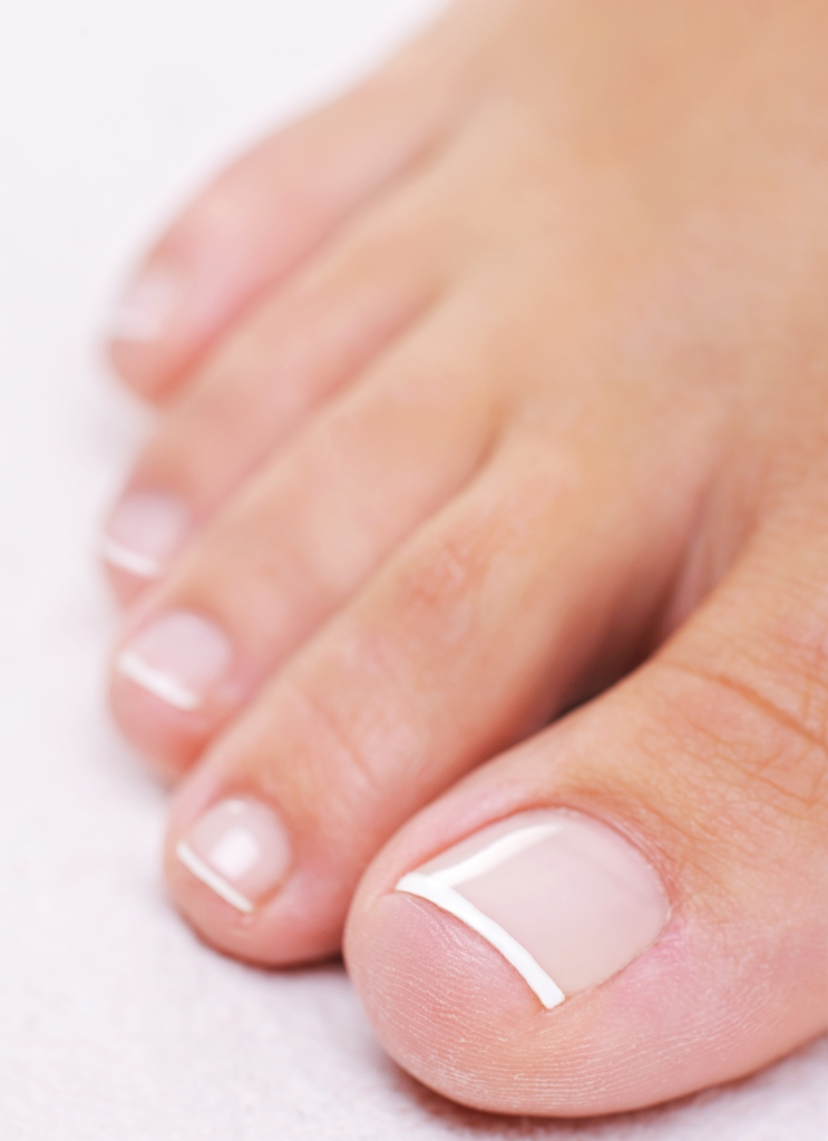 Toenails are affected