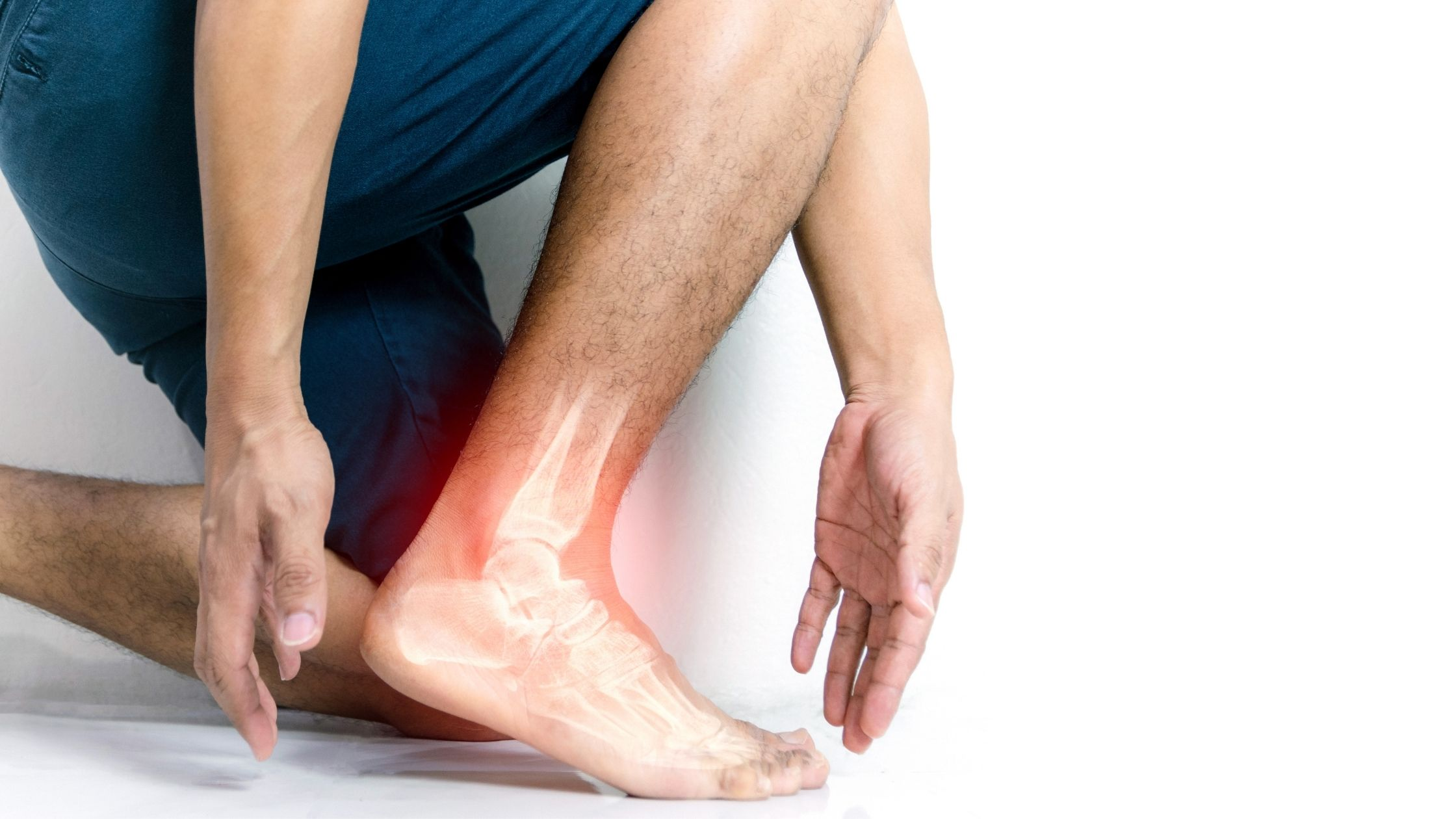Different Foot Arch Pain Causes That are Not Plantar Fasciitis